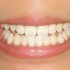 様々な理由により歯肉は退縮する